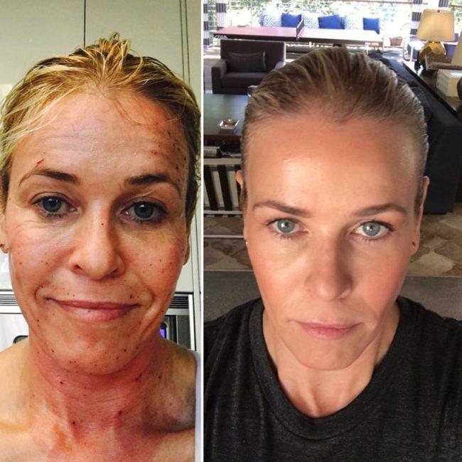 Come essere belle: trattamento aser frazionario per eliminare gli inestetismi della pelle