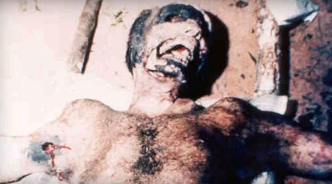 misteri inspiegabili: l'uomo mutilato da mercanti di organi o da qualcos'altro?