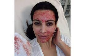 Come essere belle: Kim Kardashian e il trattamento emo-facciale
